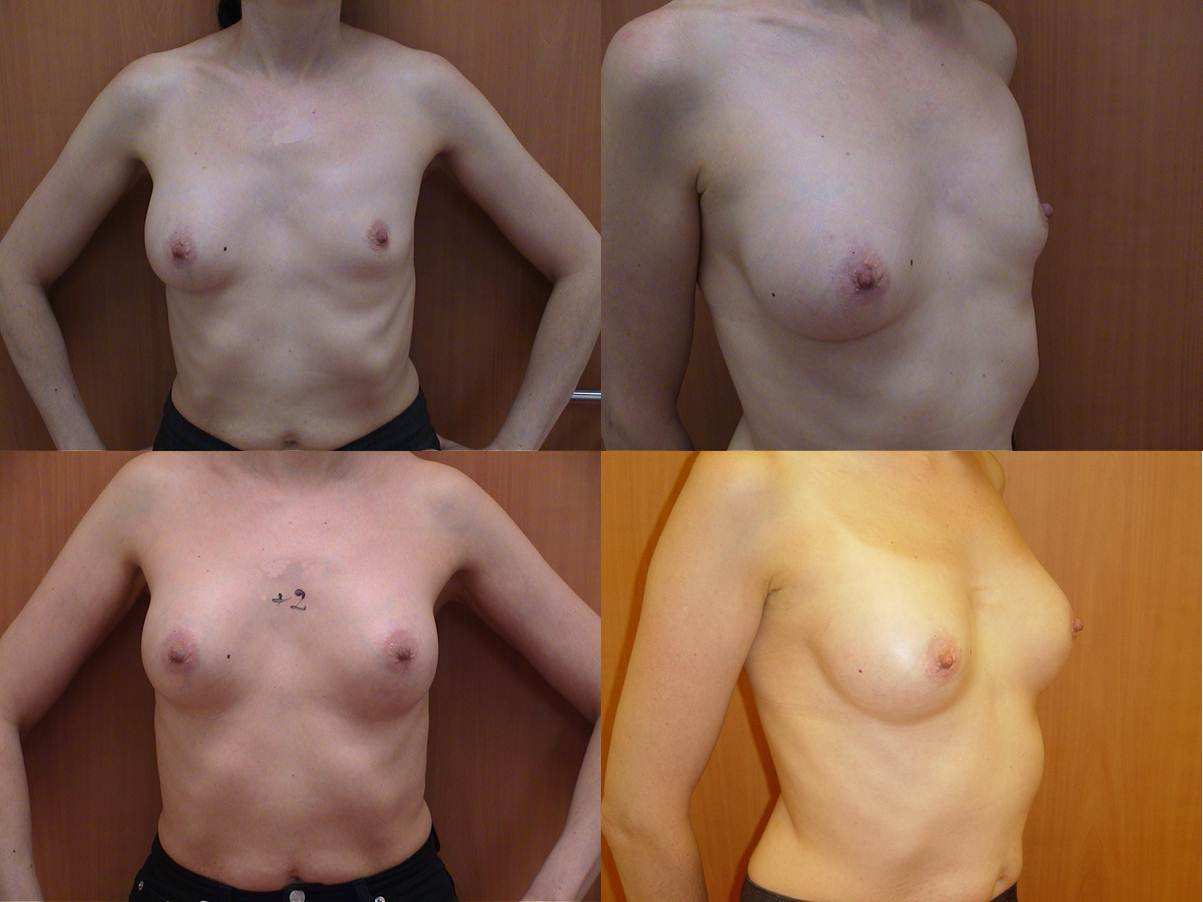 Dégonflement Prothèse av et après