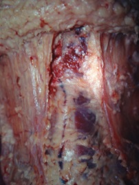 Photo Article Platysma 2 web