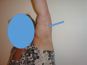 brachio-cicatrice-post
