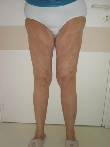 cruroplastie-verticale-preop