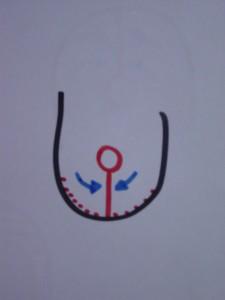 schema-pince