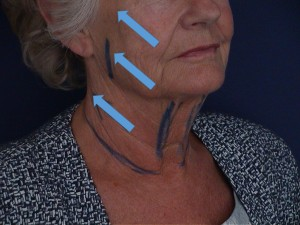 vecteur-lifting-facial