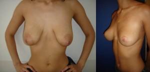 Cas 1 Plastie Mammaire Profil Avant Après