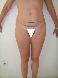 Fig 2 Minilift abdominal