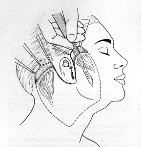 schema-lifting-facial